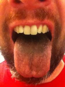 Matt's Hairy Tongue